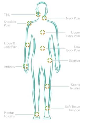 Cold laser treatment chart